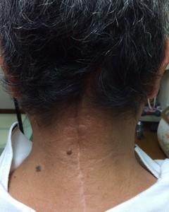 60歳代男性 脳腫瘍手術後